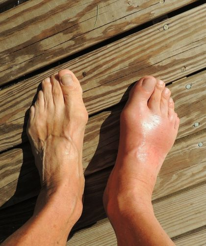 Gout: eliminating the root cause