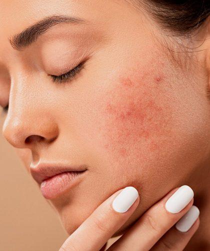 will-eczema-go-away